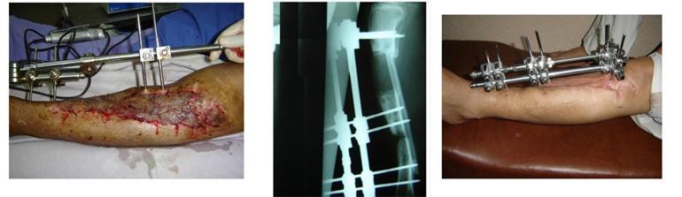 Manejo de las fracturas expuestas la pérdida de un segmento óseo