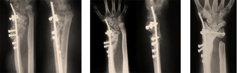 Manejo de una seudoartritis disal de radio
